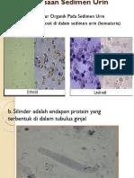 Pemeriksaan Sedimen Urin.pptx