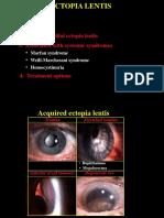 ectopia lentis