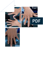 Post Inflamasi Hipopigmentasi.docx