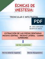 Tecnicas de Anestesias
