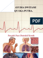 Askep ppok (1).pptx