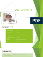 Hiperuricemia, Gout Arthritis