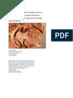 Path Neuropathology Illutsratede for USMLE