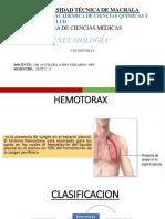 Neumotorax Hemitorax Completo