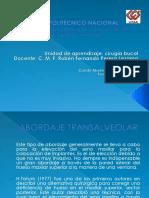 Abordaje Transalveolar