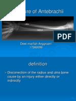 Fracture of Radius, Ulna, And Humerus