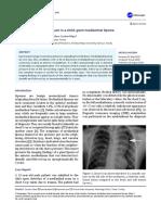 A rare tumor of mediastinum in a child; giant mediastinal lipoma.pdf