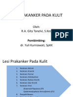 128351980-PPT-Lesi-Prakanker.pdf