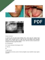 Complex odontoma.docx
