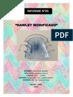 HAWLEY MODIFICADO CON EPRLA-INFORME DE ODONTOPEDIATRIA II