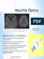 Neuritis Óptica.pptx