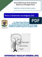 2013 3 Sindromes Neurologicos Evc