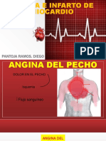 Angina e Infarto de Miocardio