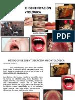 10.Metodos de Identificacion Odontologica