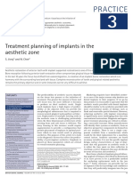 Ttt Plan of Implant in Esthetic Zone