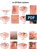 1. Types of Skin Lesions Ppt