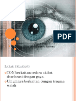 Trauma Optik Neuropati PPT