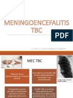MENINGOENCEFALITIS TBC