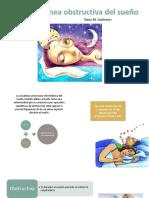 APNEA obstructiva del sueño.pptx