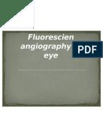 en Angiography of Eye
