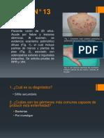 CASO N_ 13 - Treponema - Sífilis