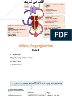 Mitral Regurgetation