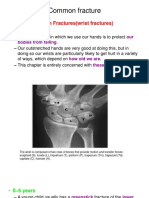 Common Fracture