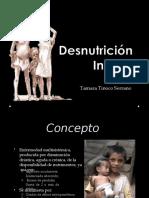 desnutricioninfantil