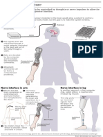Prosthetics of the Future