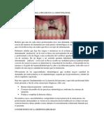 Mala Praxis en La Odontologia