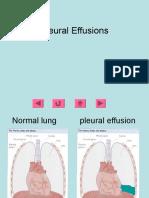 Pleural Effusions (2)