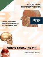parlisis-facial.pptx