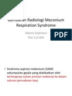 Gambaran Radiologi Meconium Respiration Syndrome