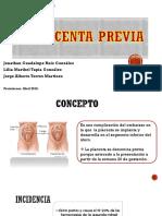 Placenta Previa