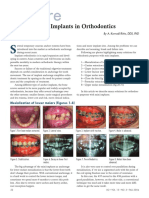 Micro Implants in Orthodontics