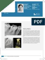 Influencia_del_Radix_Entomolaris_sobre_la_terapia_endodontica._A_proposito_de_un_caso..pdf