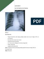 Tugas Radiologi 1 Viory Rumfot 201483001