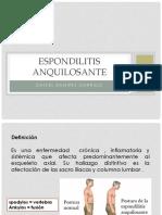 Espondilitis-anquilosante