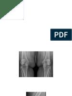 knee OA