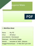 Responsi Mata- pterygium - XX.pptx