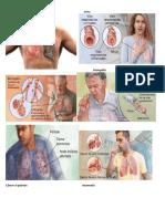enfemedades respiratorias