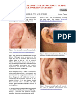 Excision of Preauricular Pits and Sinuses
