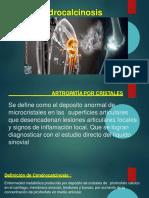 condrocalcinosis-171121235936