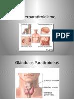 Hiperparatiroidismo.pptx