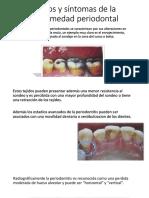Dlscrib.com Signos y Sintomas de La Enfermedad Periodontal