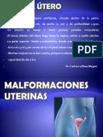 ACTUAL MALFORMACIONES UTERINAS DR LA ROSA 2013..pdf