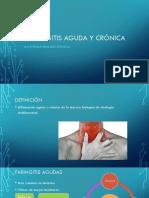 Faringitis Aguda y Crónica