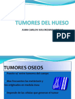 Tumores Del Hueso