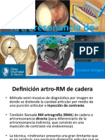 Artroresonanciadecadea