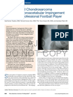 Femoral Head Chondrosarcoma Causing Femoroacetabular Impingement in an Adult Professional Football Player